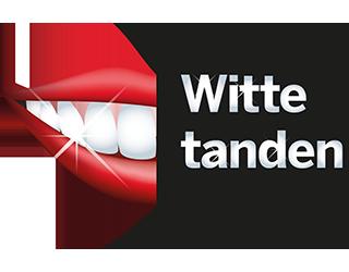 Witte tanden Spijkenisse